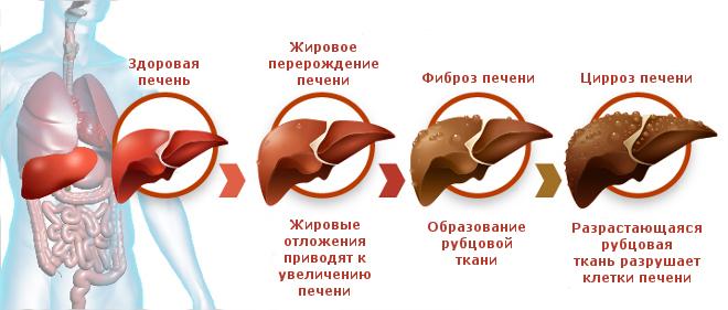 Стадии заболеваний печени