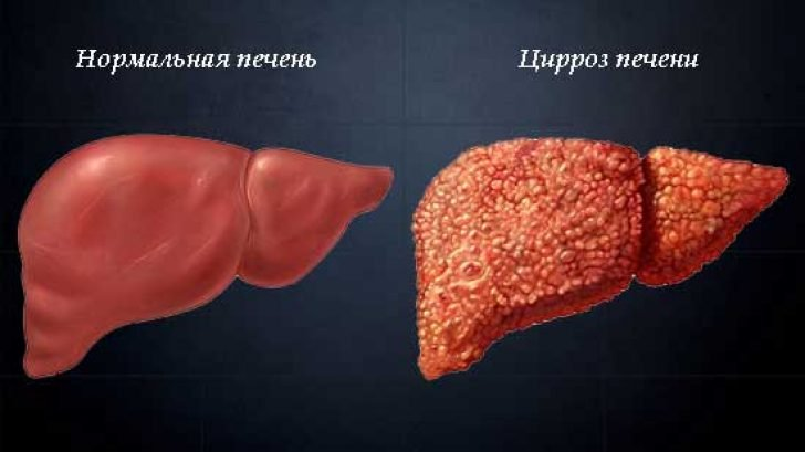 Цирроз печени на схеме
